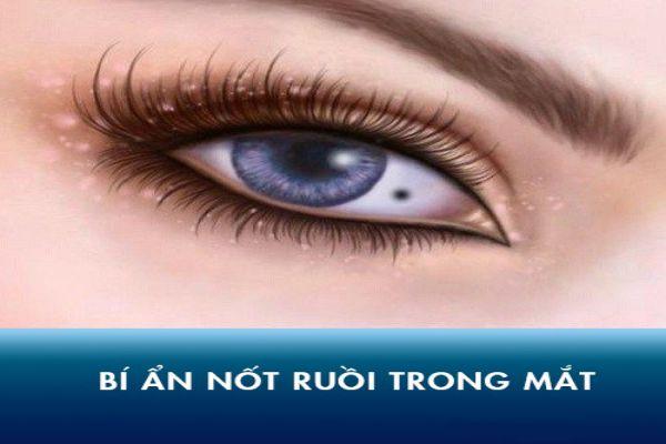 Ý nghĩa của nốt ruồi trong mắt phải trái ở nam và nữ là gì